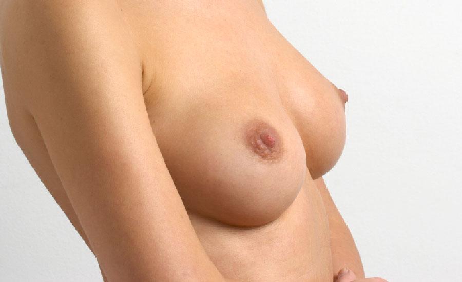 aumento de pecho, mamas mediante prótesis