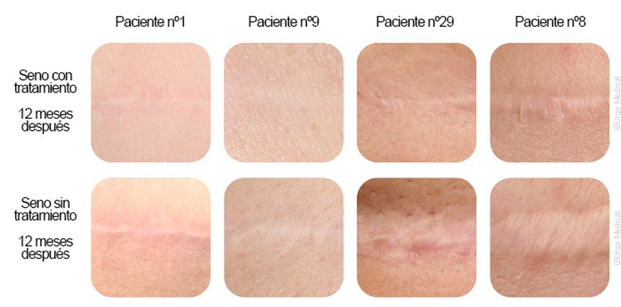 comparacion piel y cicatriz con tratamiento láser