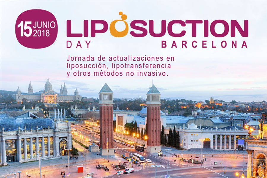 liposuction day cartel