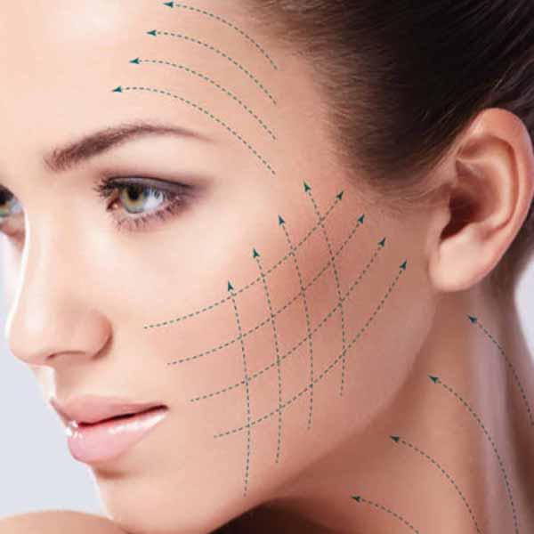 Hilos tensores- Tratamiento de medicina estética para las arrugas