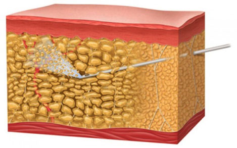 ilustración de lipedema en la piel