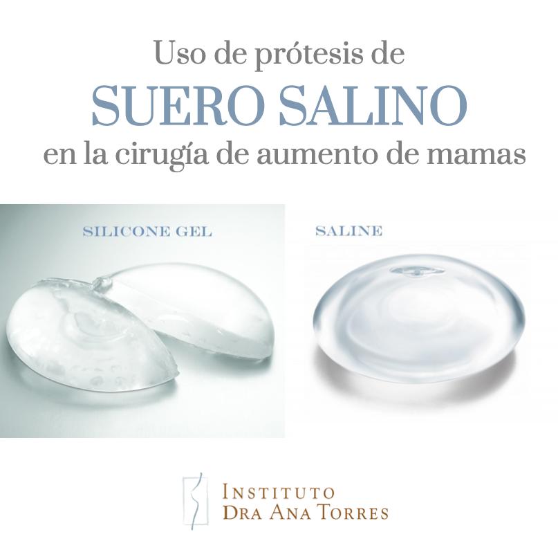 protesis-mamarias-suero-salino-barcelona-instituto-doctora-ana-torres
