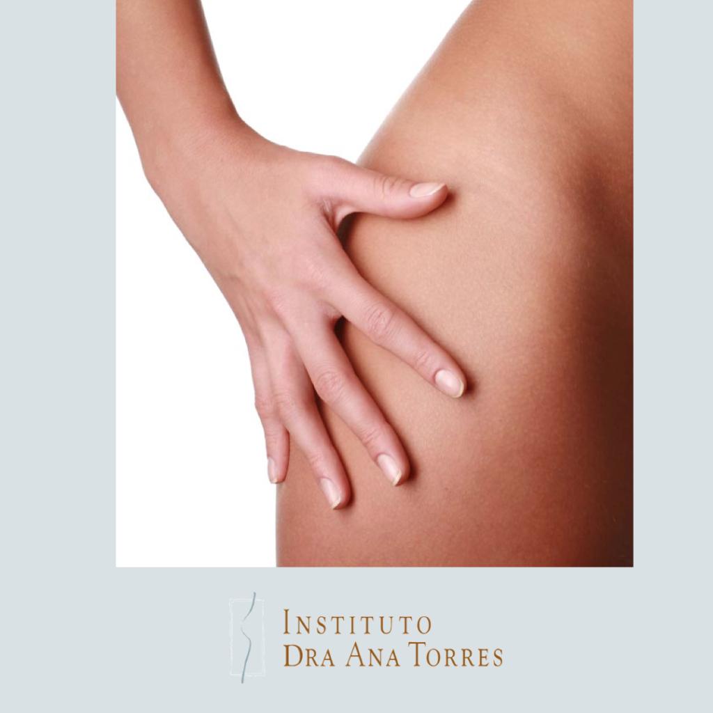 carboxiterapia-barcelona-estrias-belleza-piel-instituto-doctora-ana-torres