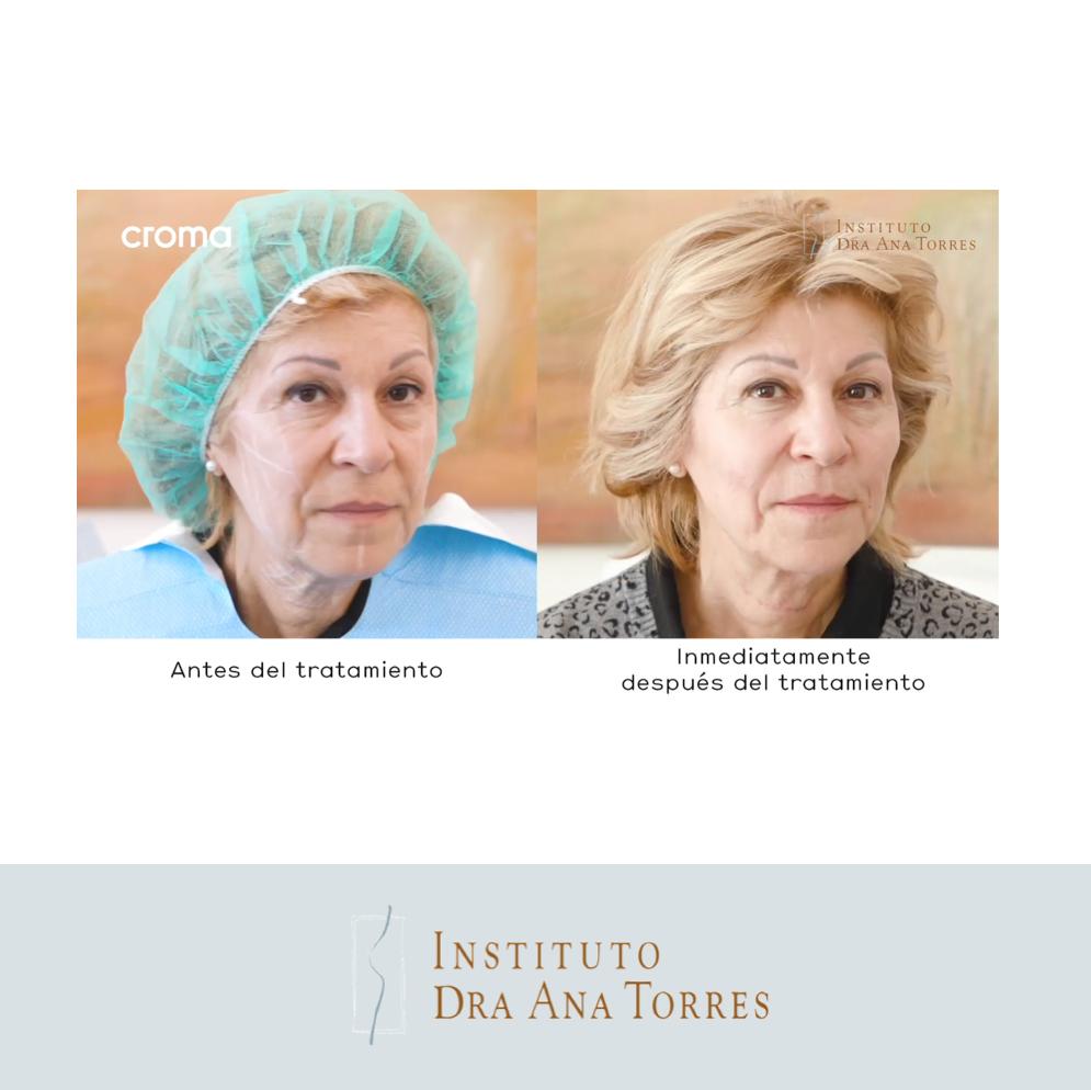 tratamiento-flacidez-cara-cuello-instituto-doctora-ana-torres-4