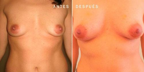 Deformidades mamarias