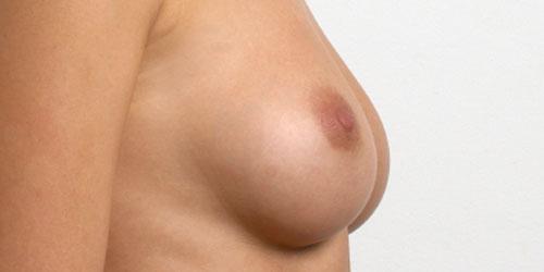 Reducció de mames
