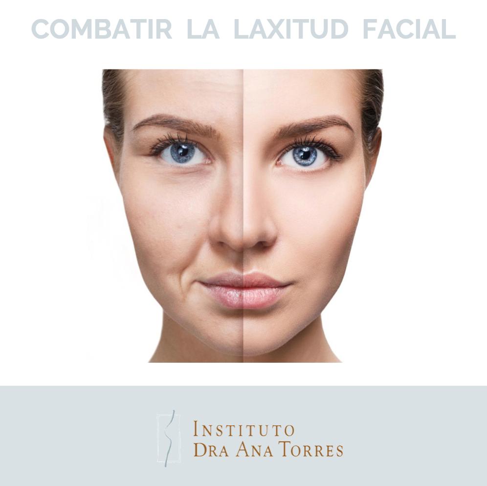 combatir-la-laxitud-facial-instituto-dra-ana-torres