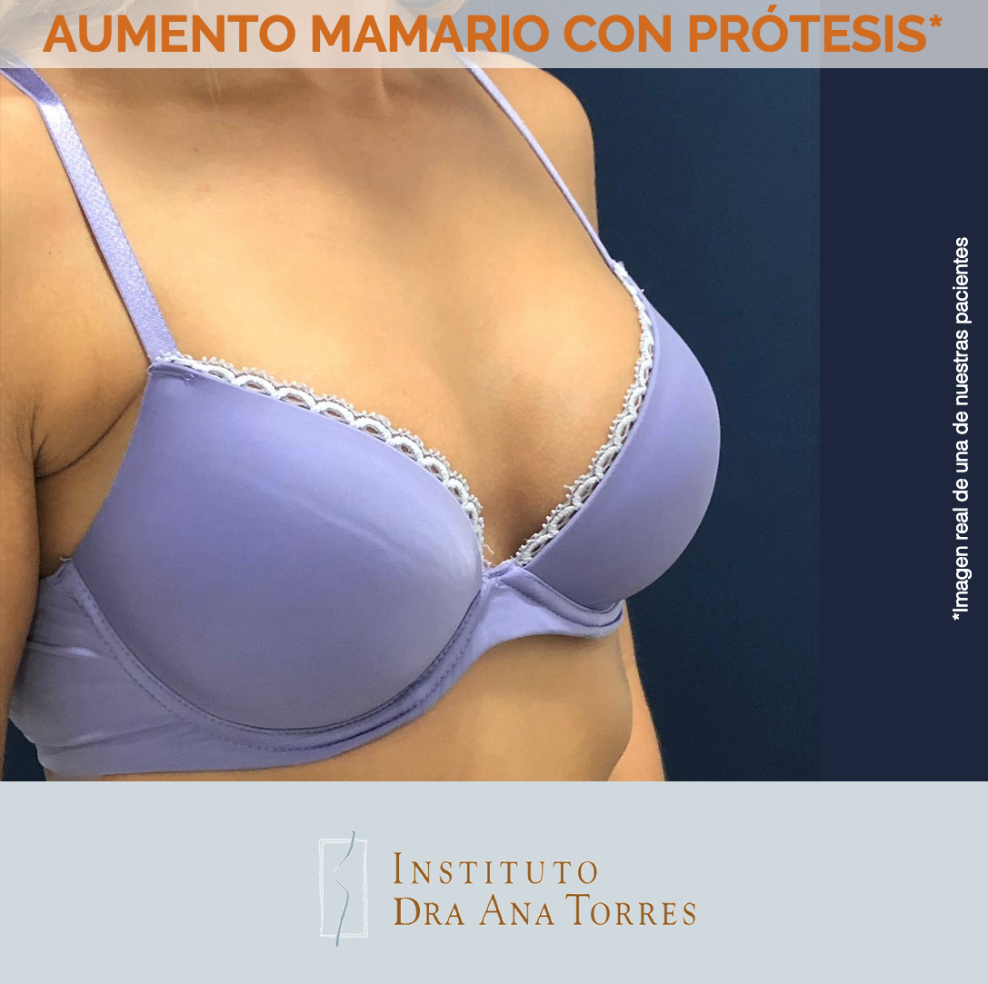 aumento-mamario-con-protesis-instituto-dra-ana-torres