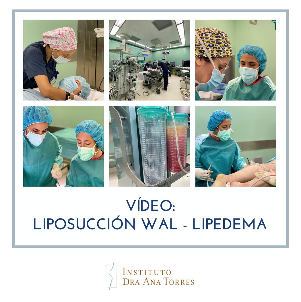 Liposucciion WAL Lipedema Barcelona