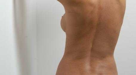 remodelación corporal BodyTite Barcelona